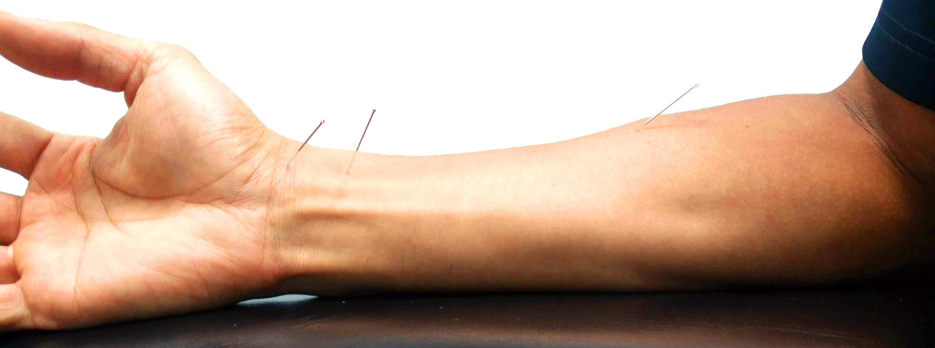 JointAction provides Acupuncture
